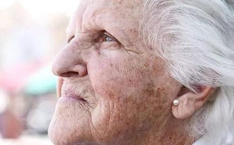 多大开始长老年斑